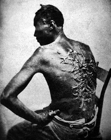 wiki-cicatrices_de_flagellation_sur_un_esclave